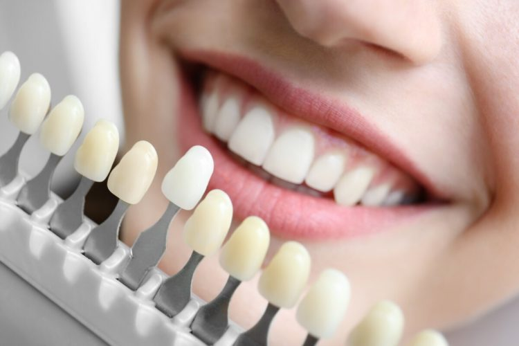 виниры акция мастер зуб